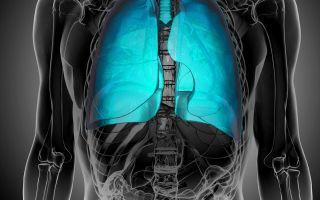 Основные симптомы рака легких у мужчин