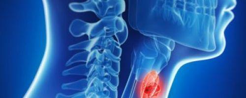 Симптомы и лечение фолликулярного рака щитовидной железы