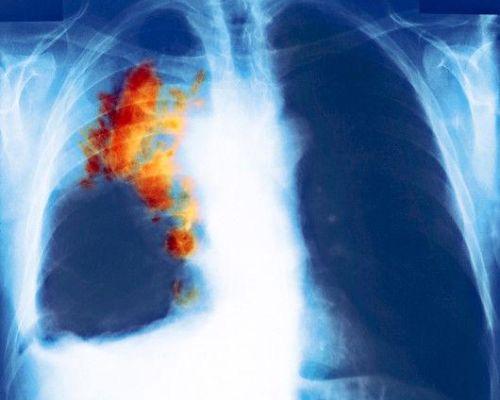 Что такое мелкоклеточный рак легкого